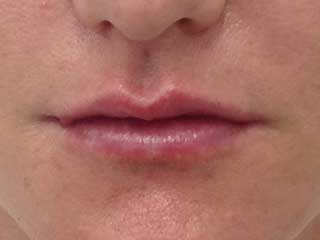 after lips