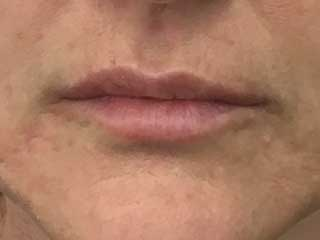 after lip lines