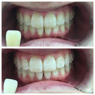 In chair teeth whitening with bleach