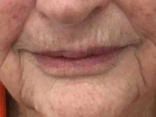 mature lips after