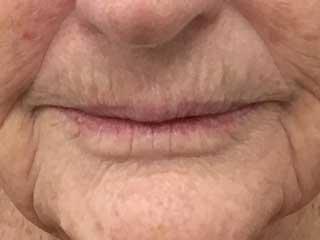mature lips before