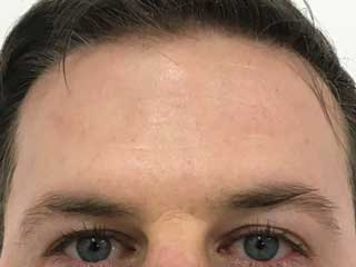 wrinkle-relaxers-after