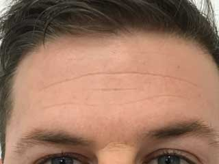 wrinkle-relaxers-before